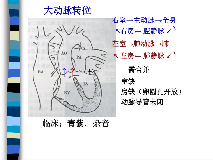 大动脉转位