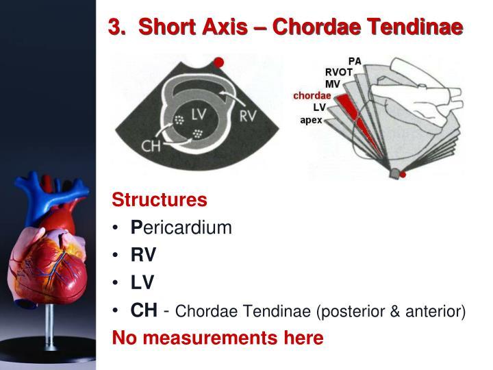 3.  Short Axis – Chordae Tendinae