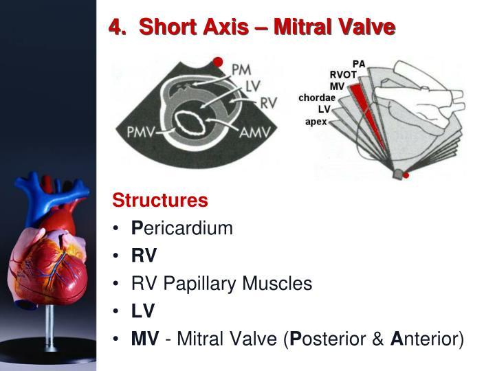 4.  Short Axis – Mitral Valve