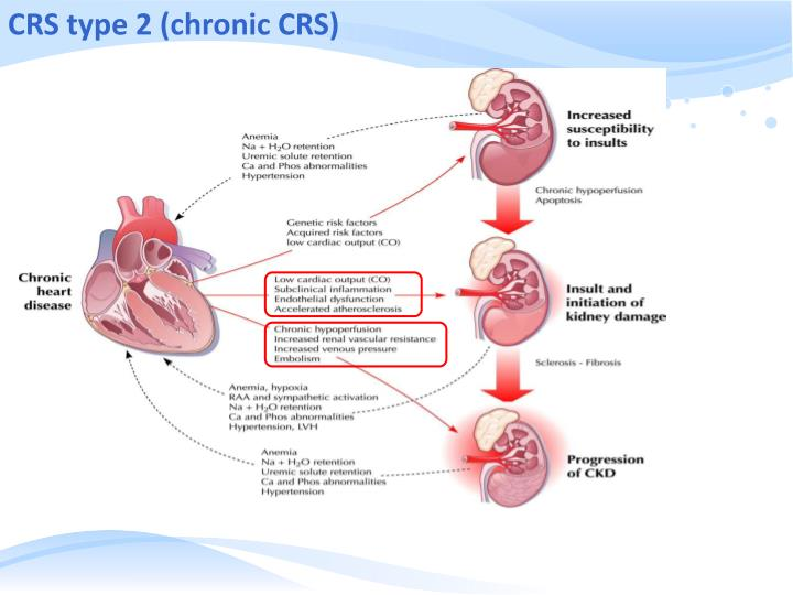 CRS type 2 (chronic CRS)