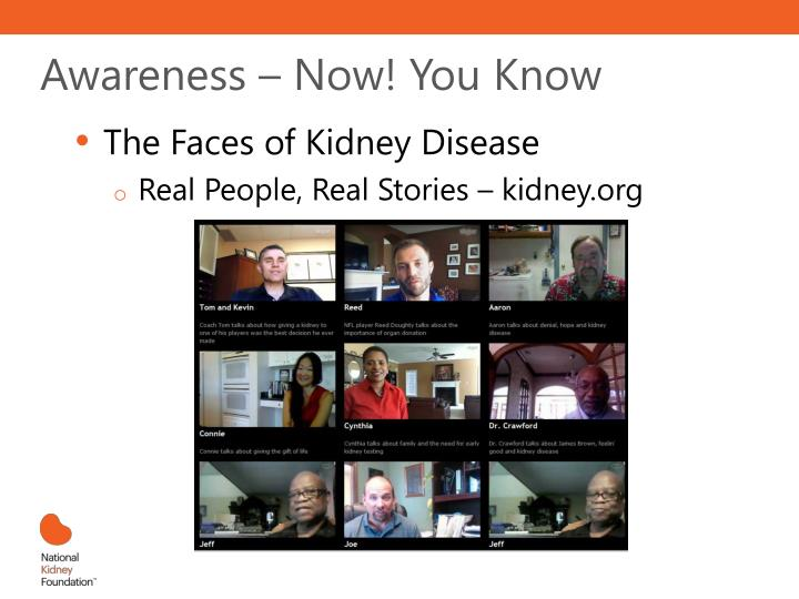Awareness – Now! You Know