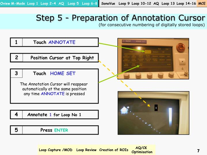 Step 5 - Preparation of Annotation Cursor