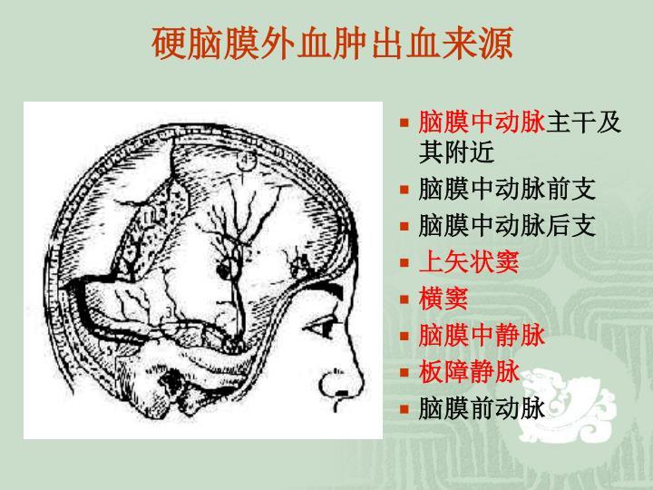 硬脑膜外血肿出血来源