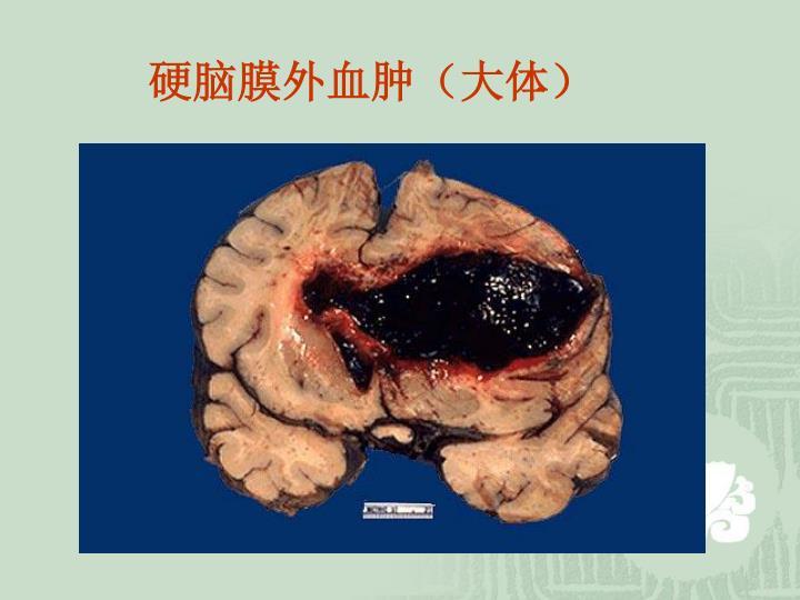 硬脑膜外血肿(大体)
