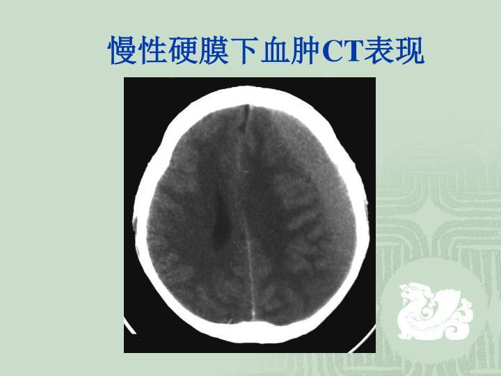 慢性硬膜下血肿