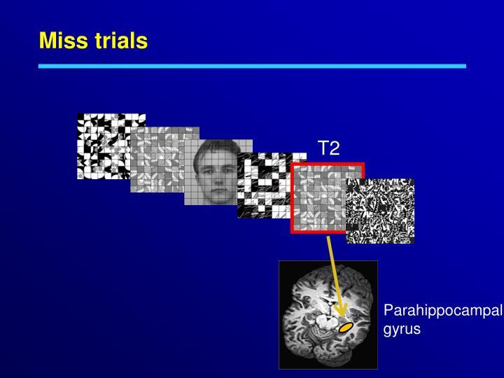 Miss trials