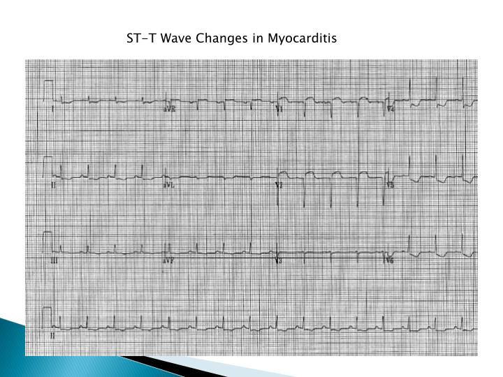 ST-T Wave Changes in Myocarditis