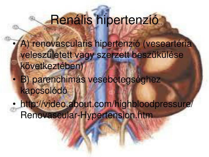 Renális hipertenzió