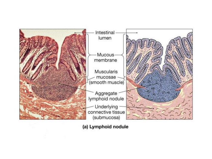 Lymph Nodules