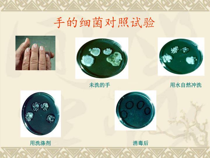 手的细菌对照试验