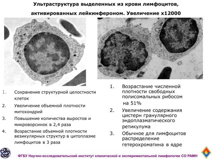 Ультраструктура выделенных из крови лимфоцитов, активированных лейкинфероном. Увеличение х12000