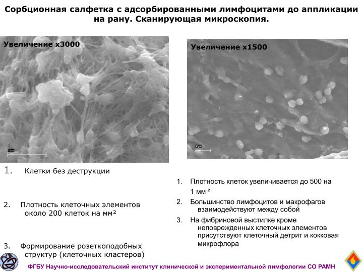 Сорбционная салфетка с адсорбированными лимфоцитами до аппликации на рану. Сканирующая микроскопия.