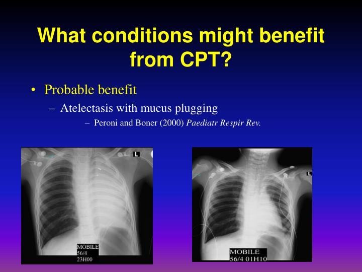 What conditions might benefit from CPT?