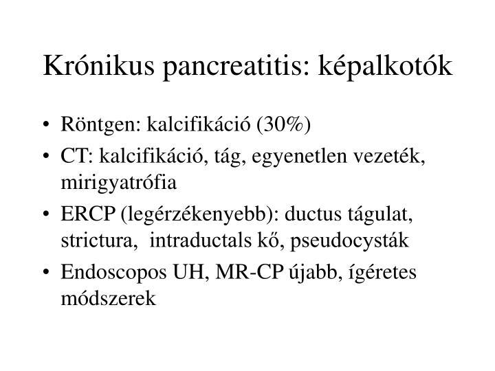Krónikus pancreatitis: képalkotók