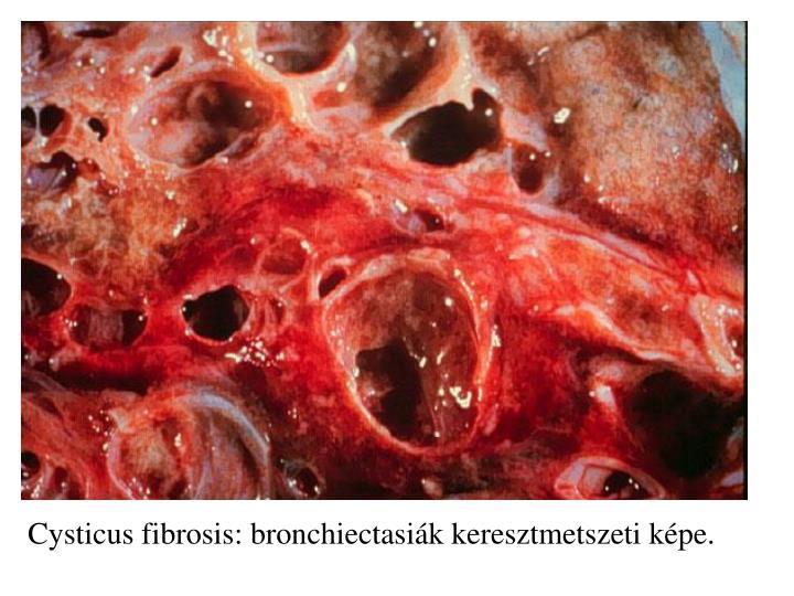 Cysticus fibrosis: bronchiectasiák keresztmetszeti képe.