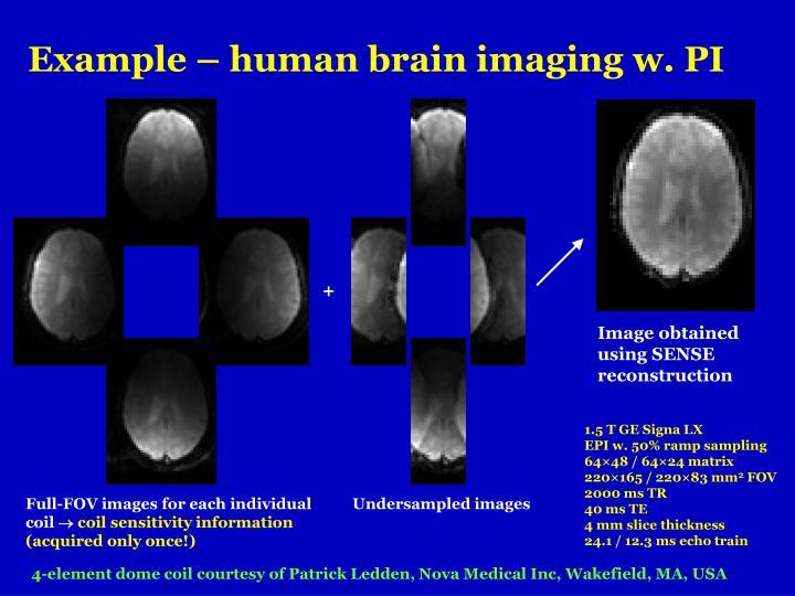 Example – human brain imaging w. PI