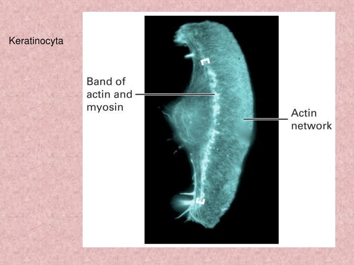 Keratinocyta