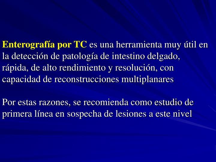 Enterografía por TC
