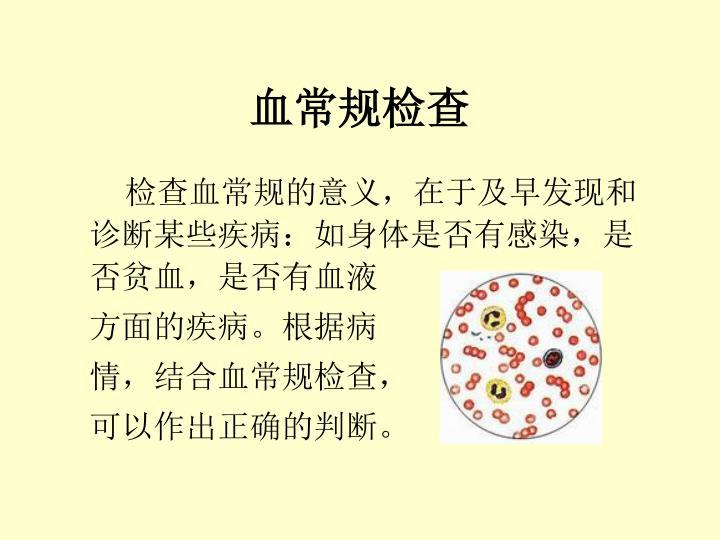 血常规检查