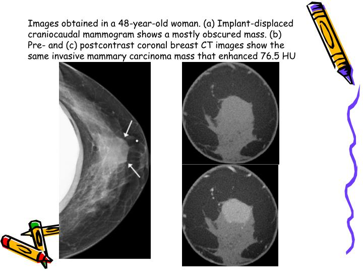 Images obtained in a 48-year-old woman. (a) Implant-displaced