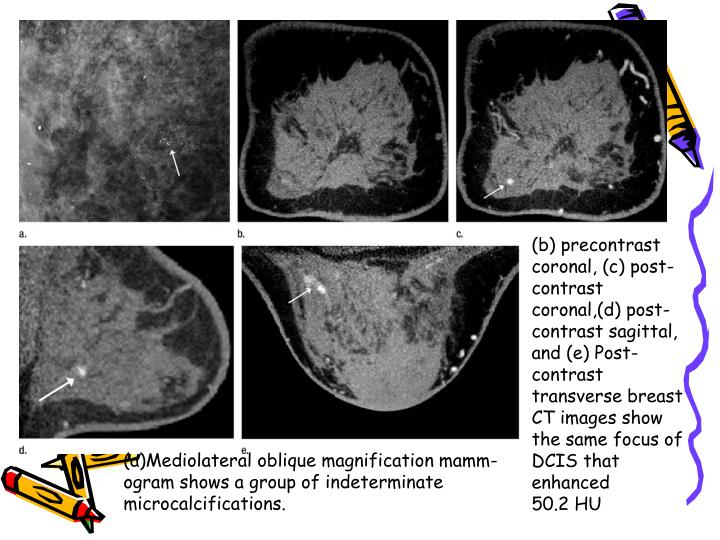 (b) precontrast coronal, (c) post-contrast coronal,(d) post-contrast sagittal, and (e) Post-contrast transverse breast CT images show the same focus of DCIS that enhanced