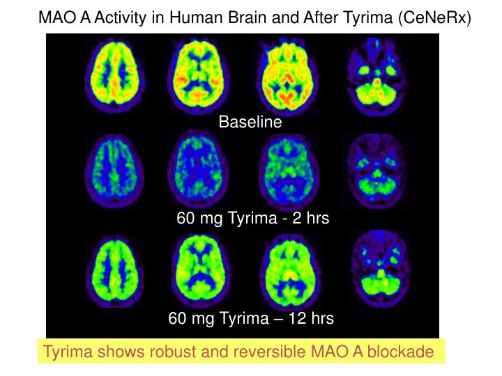 MAO A Activity in Human Brain and After Tyrima (CeNeRx)