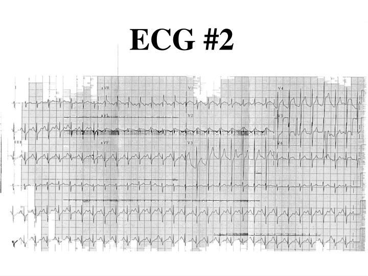 ECG #2