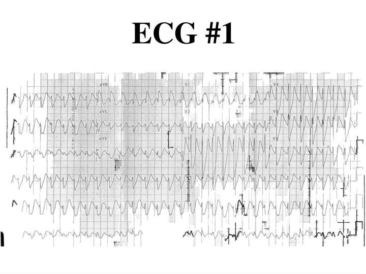 ECG #1