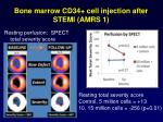 bone marrow cd34 cell injection after stemi amrs 12