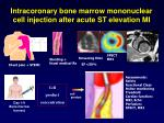 intracoronary bone marrow mononuclear cell injection after acute st elevation mi