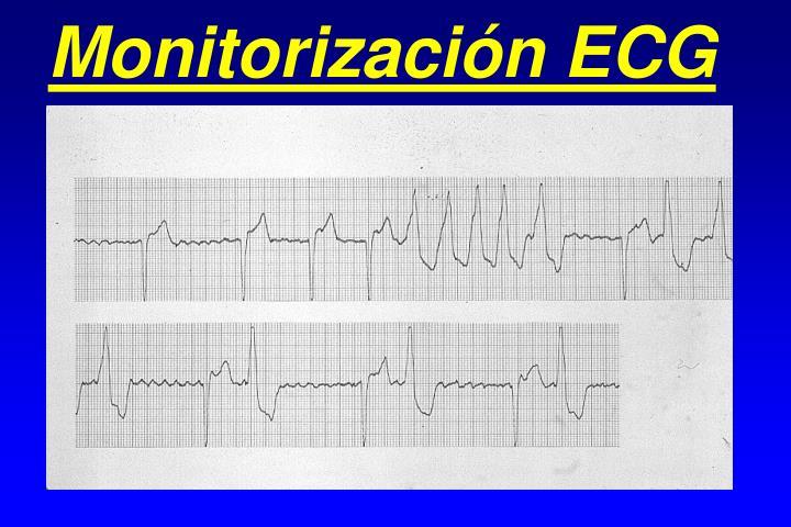 Monitorización ECG