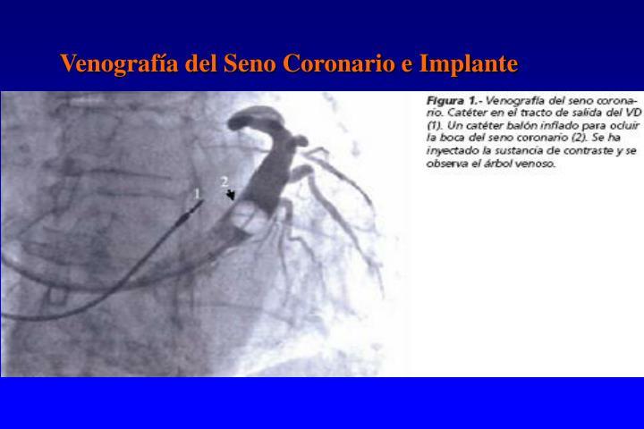Venografía del Seno Coronario e Implante