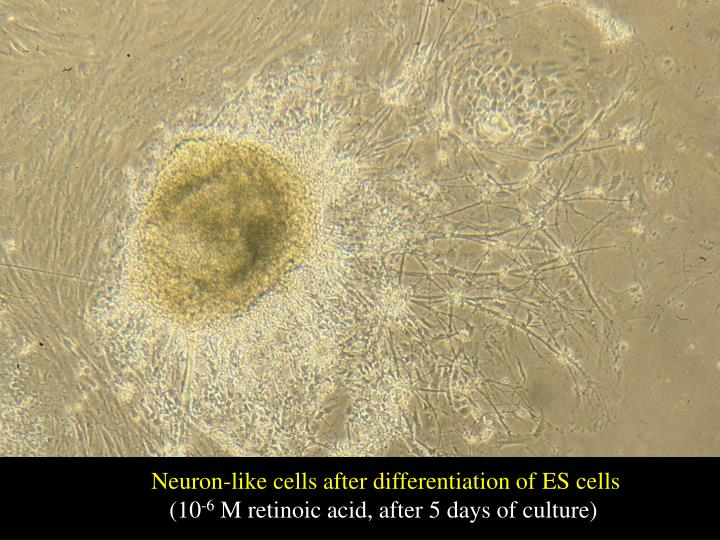 Neuron-like cells after differentiation of ES cells