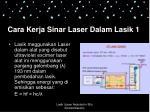 cara kerja sinar laser dalam lasik 1