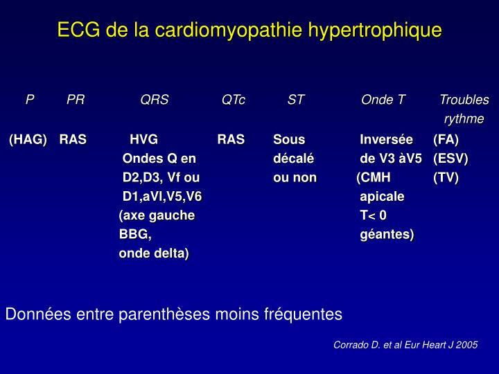 ECG de la cardiomyopathie hypertrophique