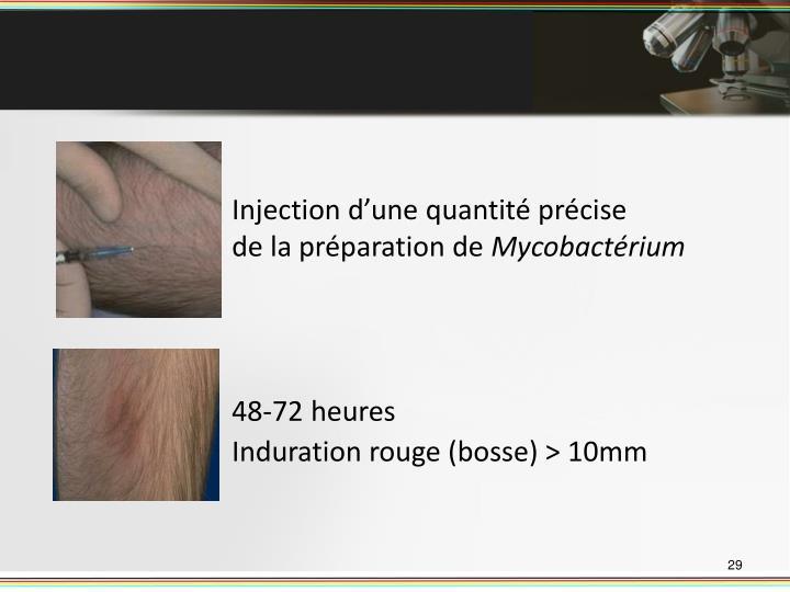 Injection d'une quantité précise