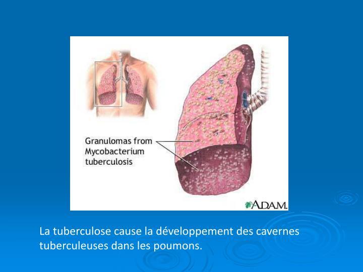 La tuberculose cause la développement des cavernes tuberculeuses dans les poumons.