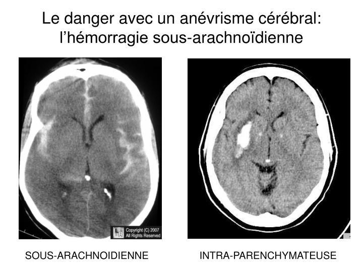 Le danger avec un anévrisme cérébral: