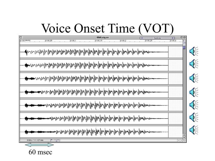 Voice Onset Time (VOT)