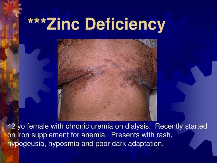 ***Zinc Deficiency