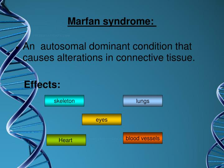 Marfan syndrome: