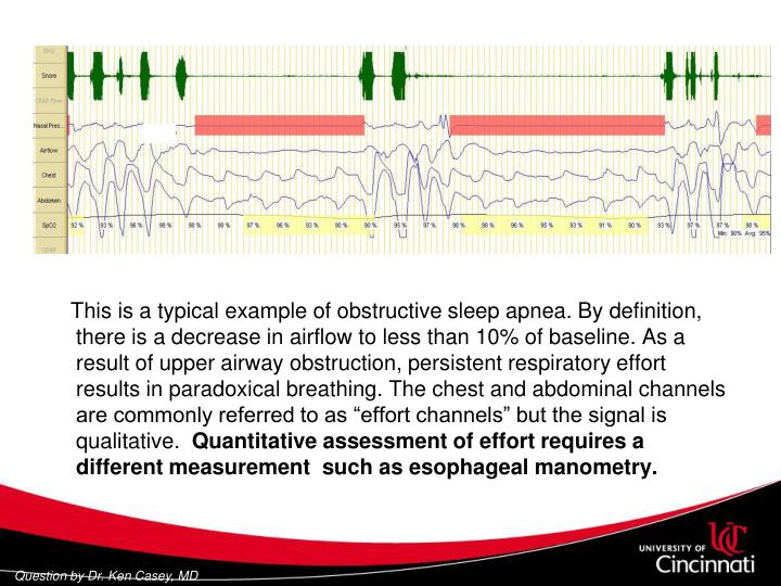 """This is a typical example of obstructive sleep apnea. By definition, there is a decrease in airflow to less than 10% of baseline. As a result of upper airway obstruction, persistent respiratory effort results in paradoxical breathing. The chest and abdominal channels are commonly referred to as """"effort channels"""" but the signal is qualitative."""