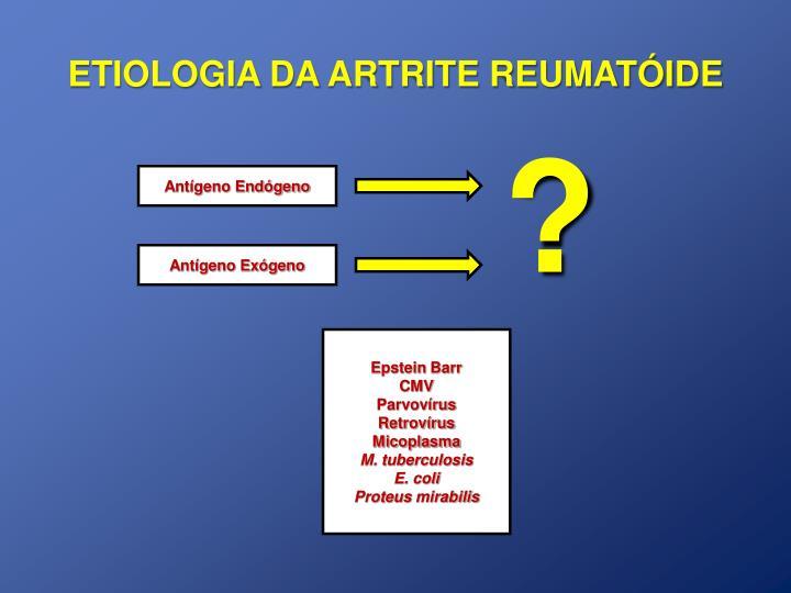 Etiologia da artrite reumat ide