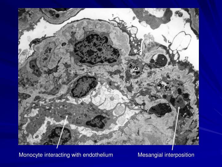 Monocyte interacting with endothelium