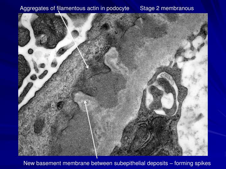 Aggregates of filamentous actin in podocyte