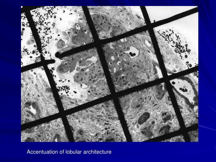Accentuation of lobular architecture