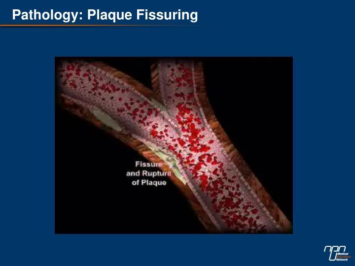 Pathology: Plaque Fissuring