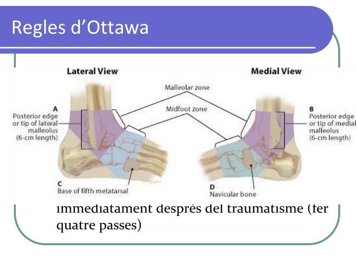 Regles d'Ottawa