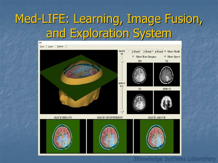 Med life learning image fusion and exploration system