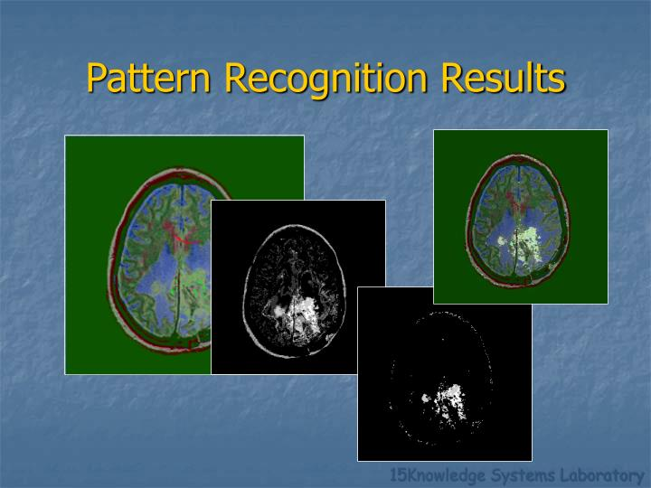 Pattern Recognition Results